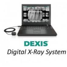 Dexis Digital X-ray
